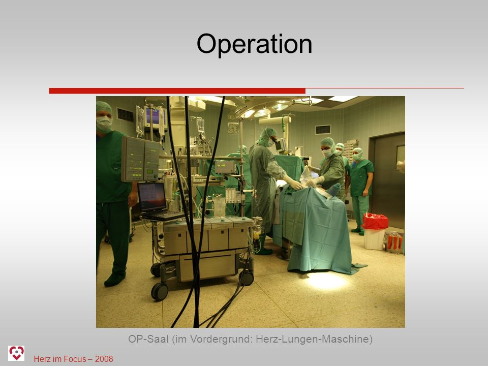 Herz im Focus – 2008 Operation OP-Saal (im Vordergrund: Herz-Lungen-Maschine)