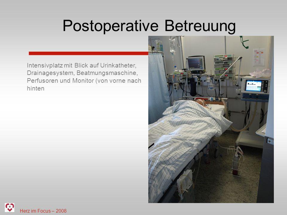 Herz im Focus – 2008 Postoperative Betreuung Intensivplatz mit Blick auf Urinkatheter, Drainagesystem, Beatmungsmaschine, Perfusoren und Monitor (von vorne nach hinten