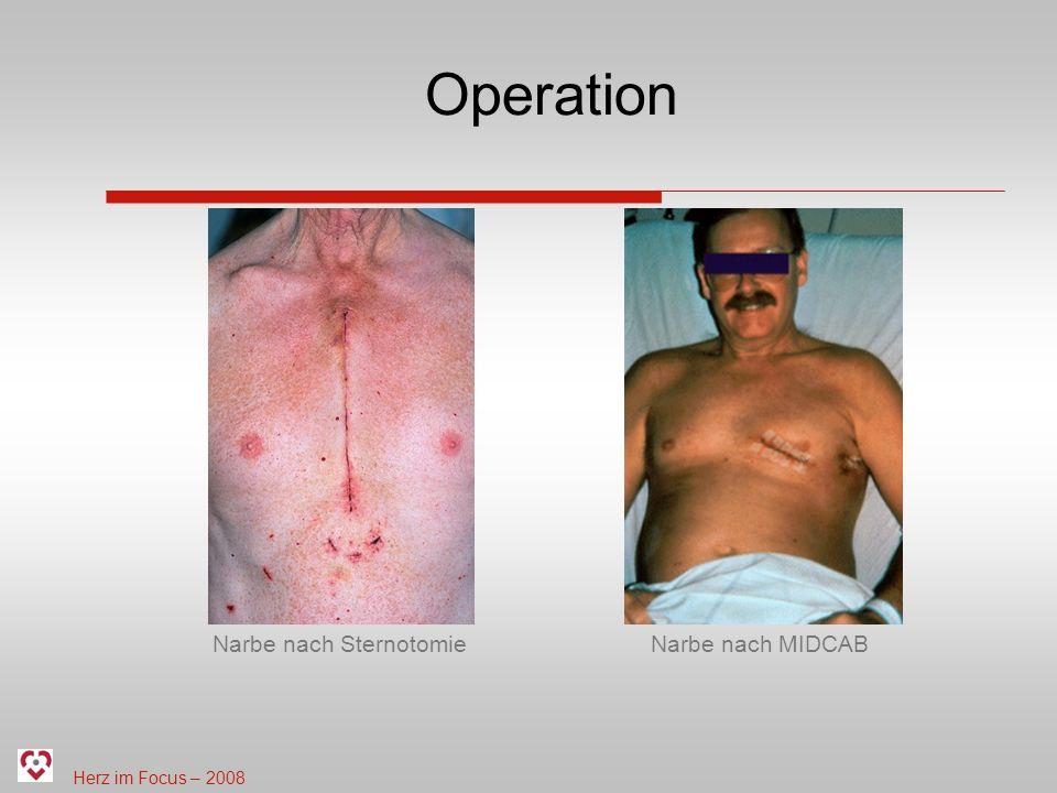 Herz im Focus – 2008 Operation Narbe nach SternotomieNarbe nach MIDCAB
