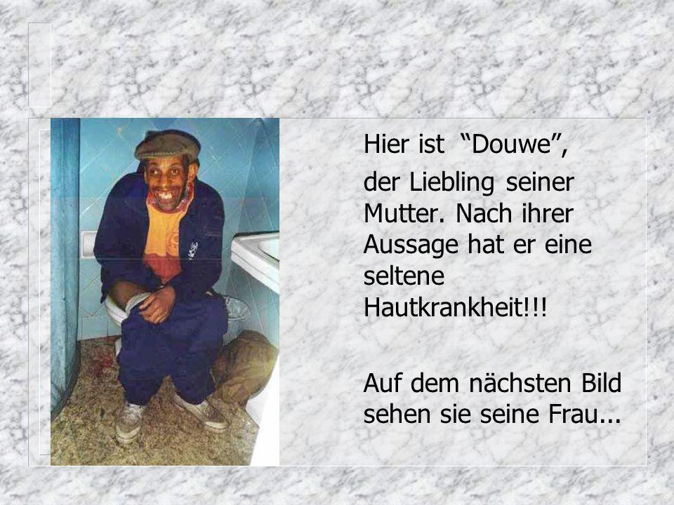 Hier ist Douwe, der Liebling seiner Mutter.Nach ihrer Aussage hat er eine seltene Hautkrankheit!!.