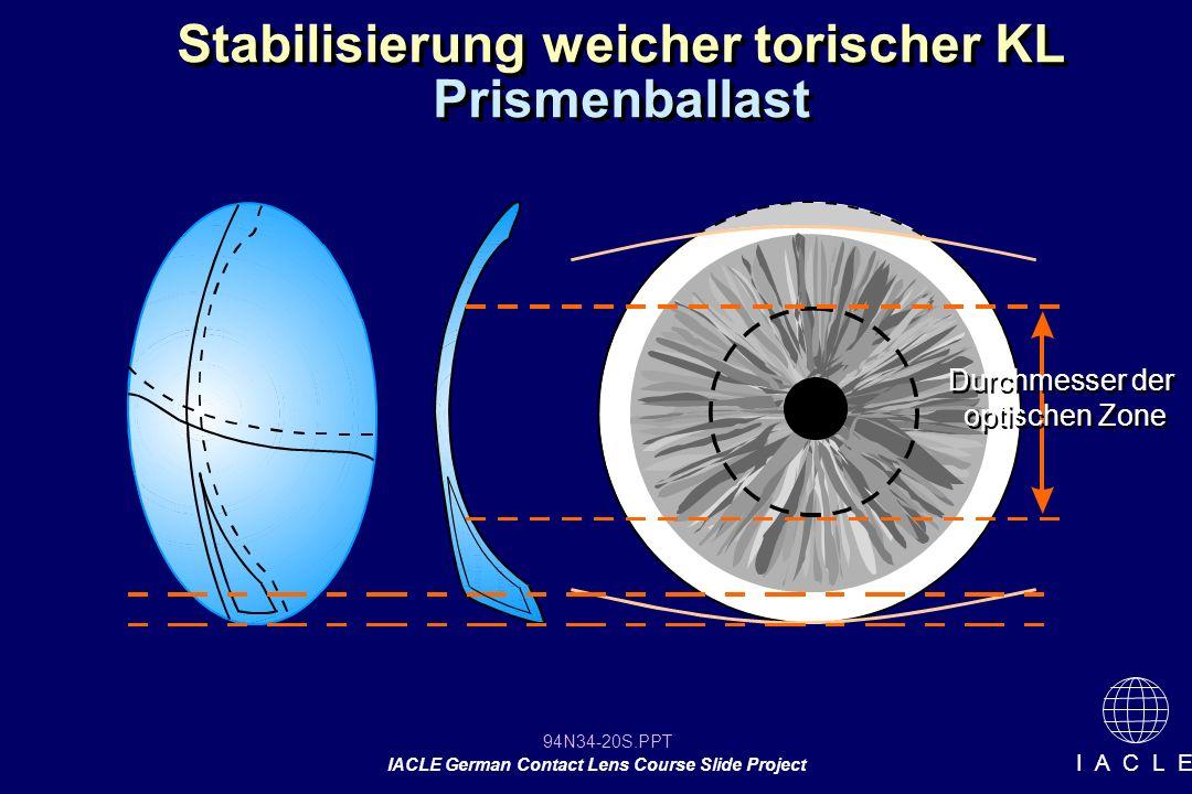 94N34-20S.PPT IACLE German Contact Lens Course Slide Project I A C L E Stabilisierung weicher torischer KL Prismenballast Durchmesser der optischen Zone Durchmesser der optischen Zone