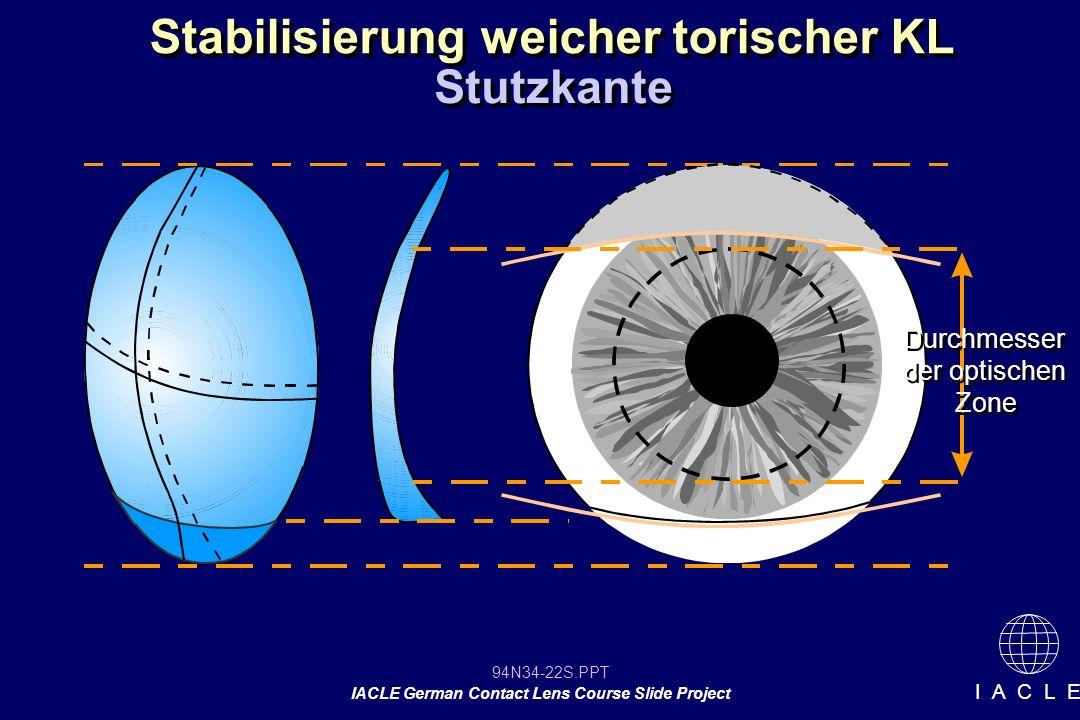 94N34-22S.PPT IACLE German Contact Lens Course Slide Project I A C L E Stabilisierung weicher torischer KL Stutzkante Durchmesser der optischen Zone Durchmesser der optischen Zone