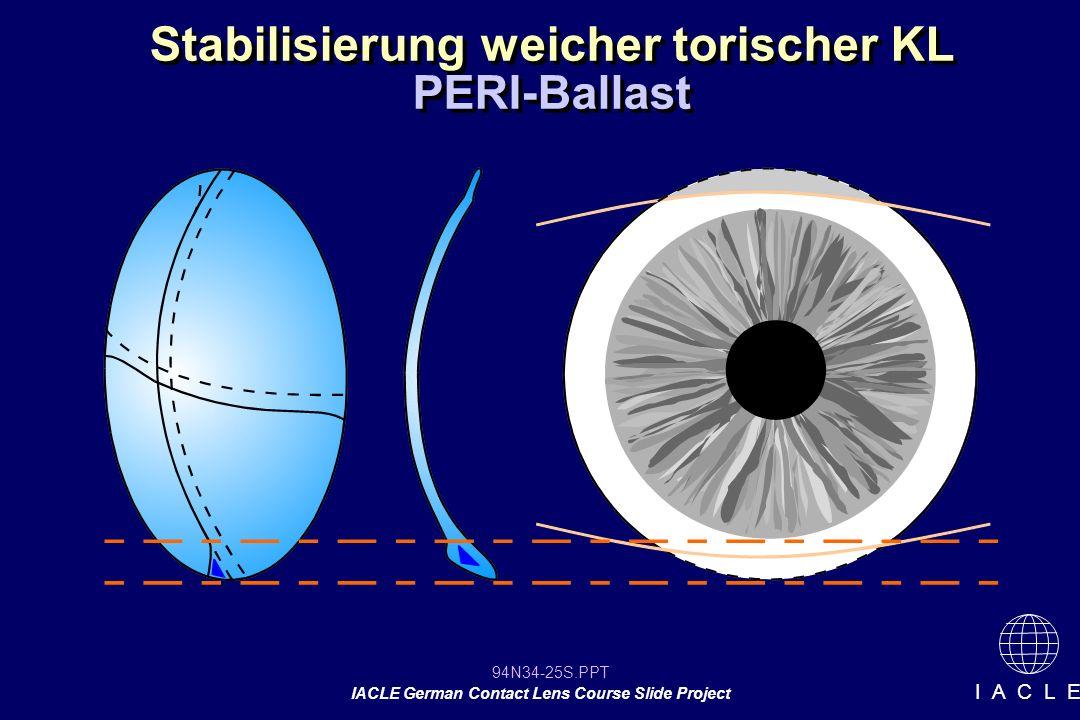 94N34-25S.PPT IACLE German Contact Lens Course Slide Project I A C L E Stabilisierung weicher torischer KL PERI-Ballast