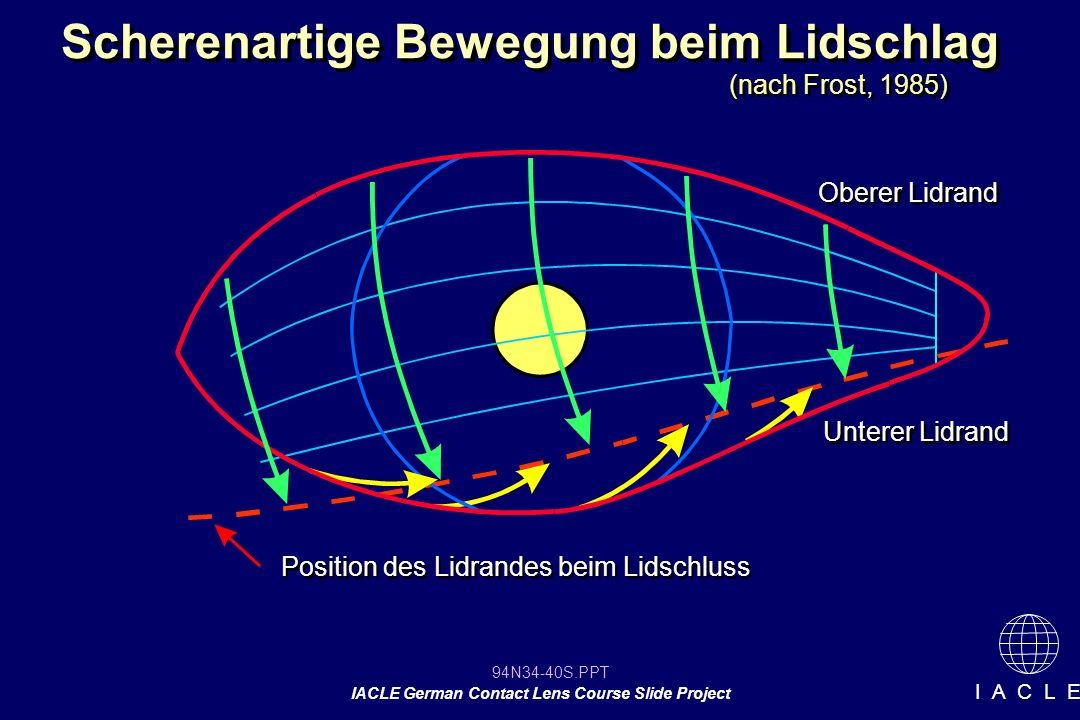 94N34-40S.PPT IACLE German Contact Lens Course Slide Project I A C L E Scherenartige Bewegung beim Lidschlag Oberer Lidrand Unterer Lidrand Position des Lidrandes beim Lidschluss (nach Frost, 1985)