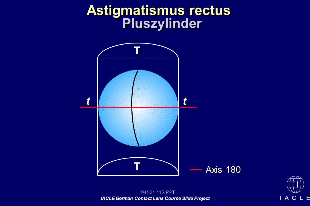 94N34-41S.PPT IACLE German Contact Lens Course Slide Project I A C L E Astigmatismus rectus Pluszylinder T T T T t t t t Axis 180