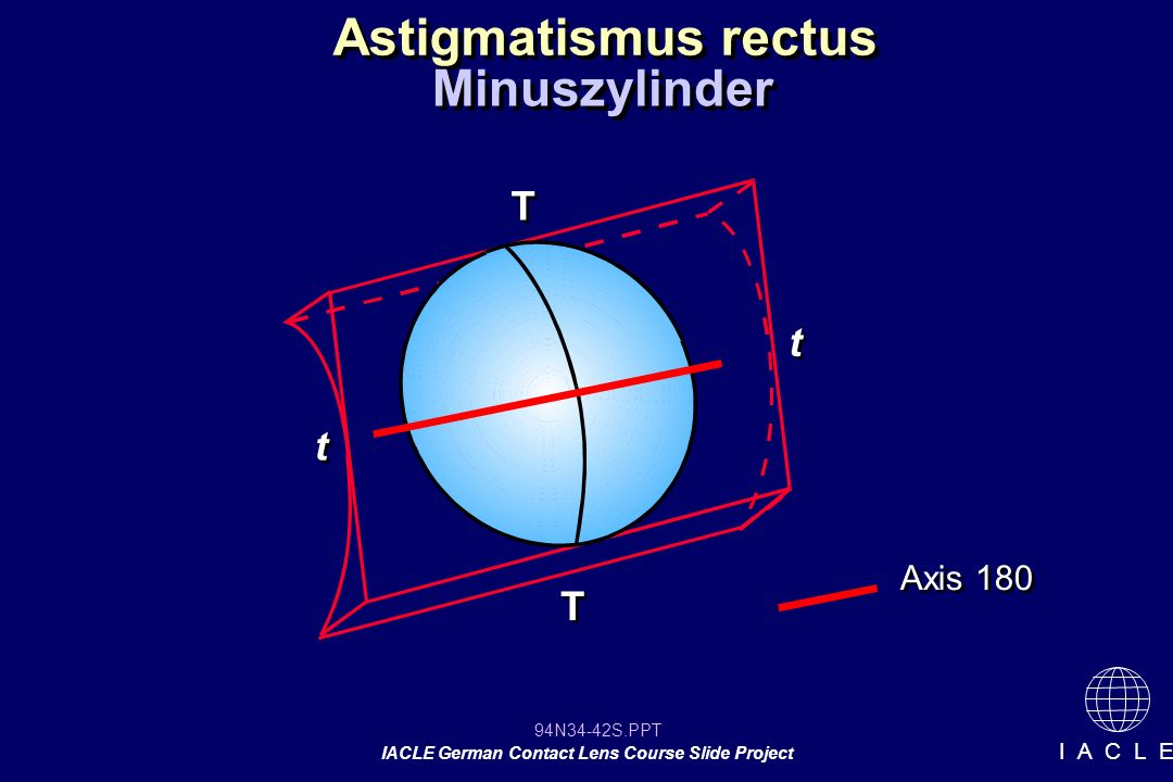 94N34-42S.PPT IACLE German Contact Lens Course Slide Project I A C L E Astigmatismus rectus Minuszylinder Axis 180 T T T T t t t t