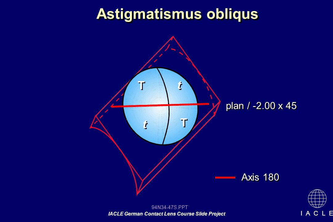 94N34-47S.PPT IACLE German Contact Lens Course Slide Project I A C L E Astigmatismus obliqus T T T T t t plan / -2.00 x 45 t t Axis 180