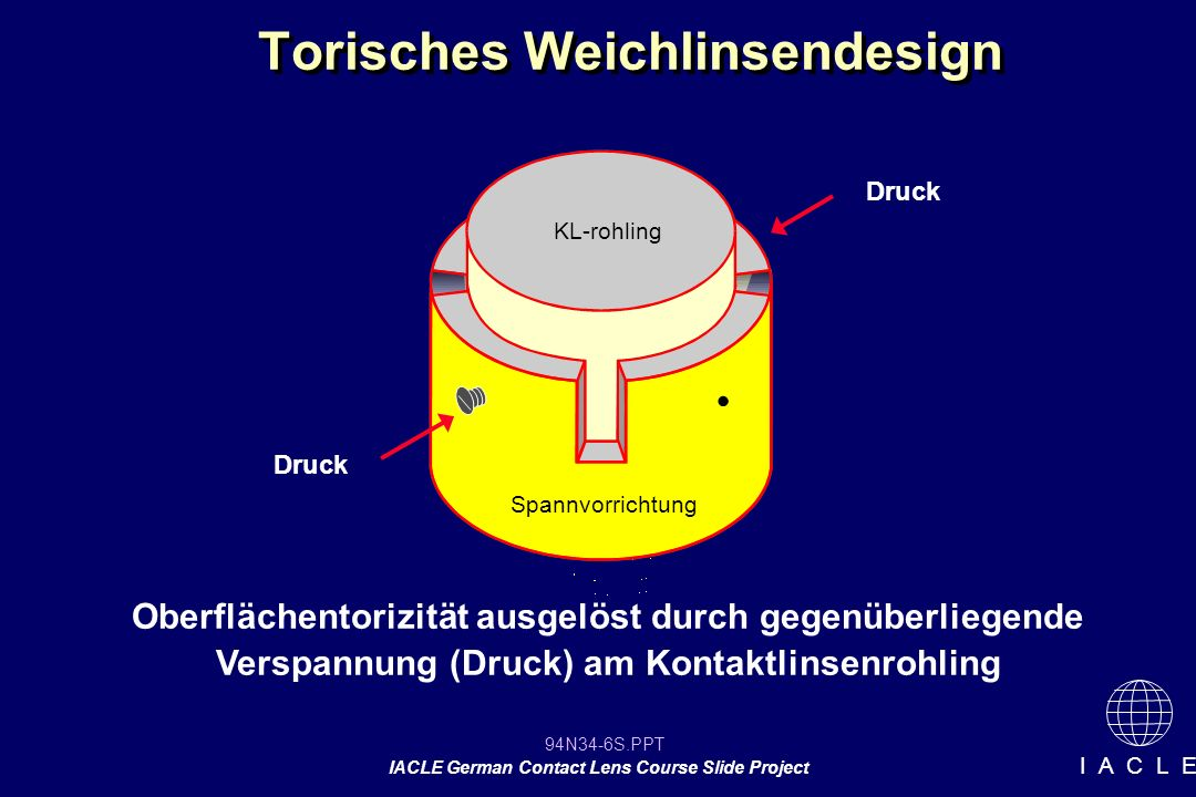 94N34-17S.PPT IACLE German Contact Lens Course Slide Project I A C L E
