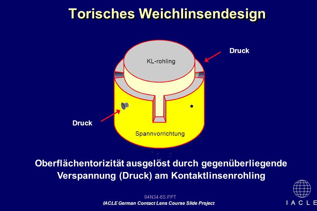 94N34-6S.PPT IACLE German Contact Lens Course Slide Project I A C L E Torisches Weichlinsendesign Oberflächentorizität ausgelöst durch gegenüberliegende Verspannung (Druck) am Kontaktlinsenrohling Druck KL-rohling Spannvorrichtung
