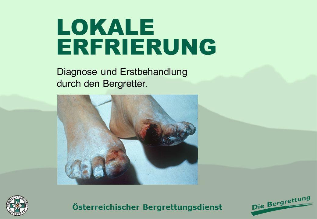 Österreichischer Bergrettungsdienst LOKALE ERFRIERUNG Diagnose und Erstbehandlung durch den Bergretter.