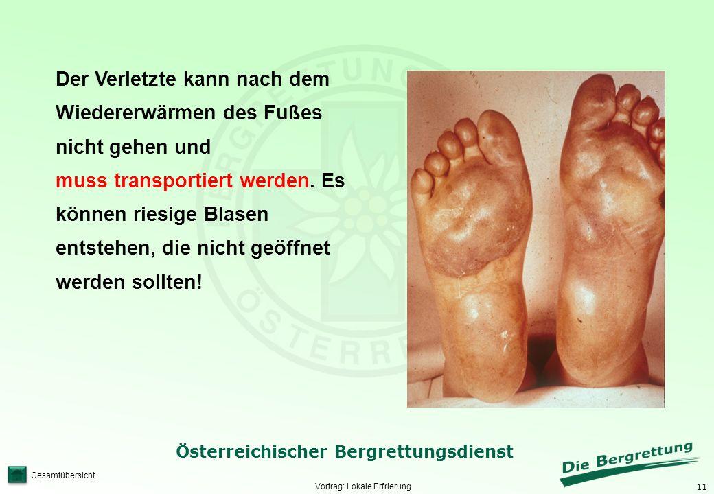 11 Österreichischer Bergrettungsdienst Gesamtübersicht Vortrag: Lokale Erfrierung Der Verletzte kann nach dem Wiedererwärmen des Fußes nicht gehen und muss transportiert werden.