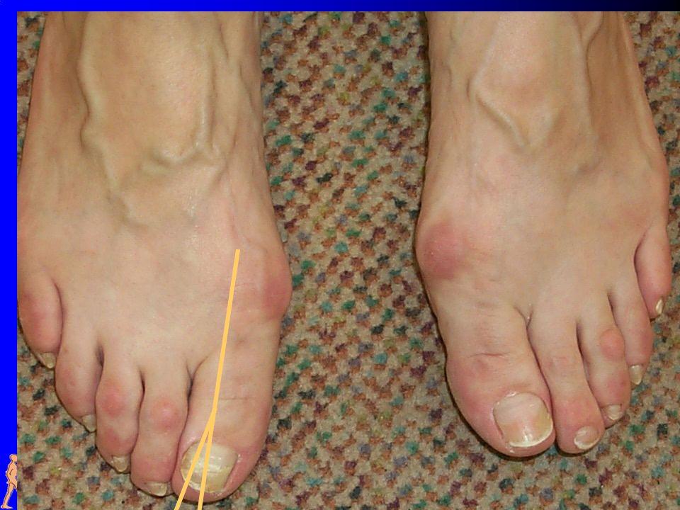 Gründe: Menschen, die unter diesem Effekt leiden, haben einige körperliche Besonderheiten, die entweder angeboren oder sehr frühzeitig erworben werden