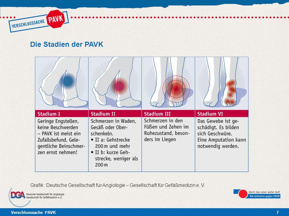 Verschlusssache PAVK7 Die Stadien der PAVK Grafik: Deutsche Gesellschaft für Angiologie – Gesellschaft für Gefäßmedizin e. V.