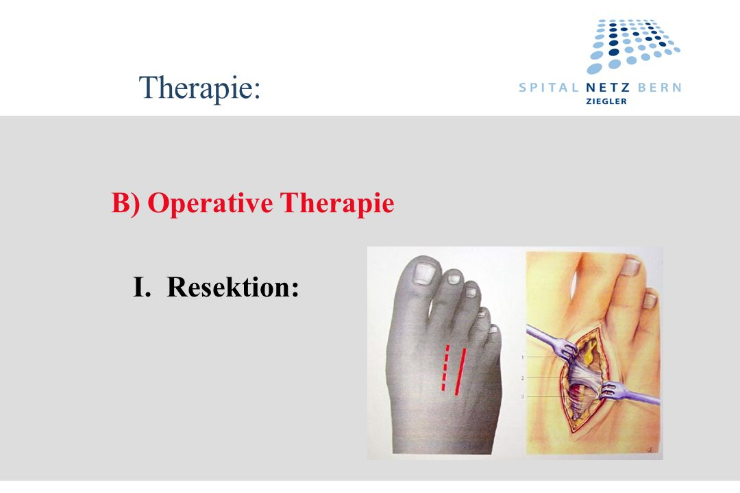 Therapie: B) Operative Therapie I. Resektion: