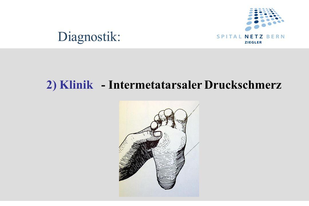 Diagnostik: 2) Klinik- Intermetatarsaler Druckschmerz
