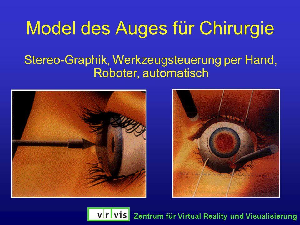 Zentrum für Virtual Reality und Visualisierung Model des Auges für Chirurgie Stereo-Graphik, Werkzeugsteuerung per Hand, Roboter, automatisch