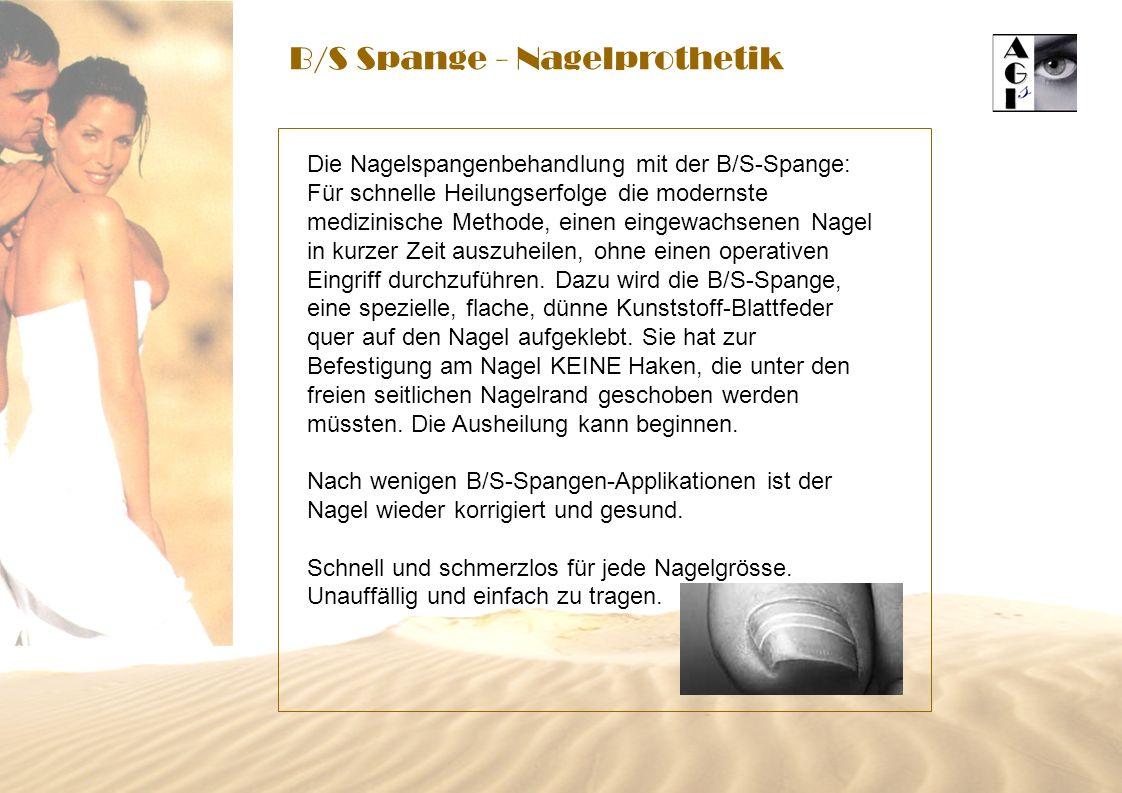 B/S Spange - Nagelprothetik Die Nagelspangenbehandlung mit der B/S-Spange: Für schnelle Heilungserfolge die modernste medizinische Methode, einen eing