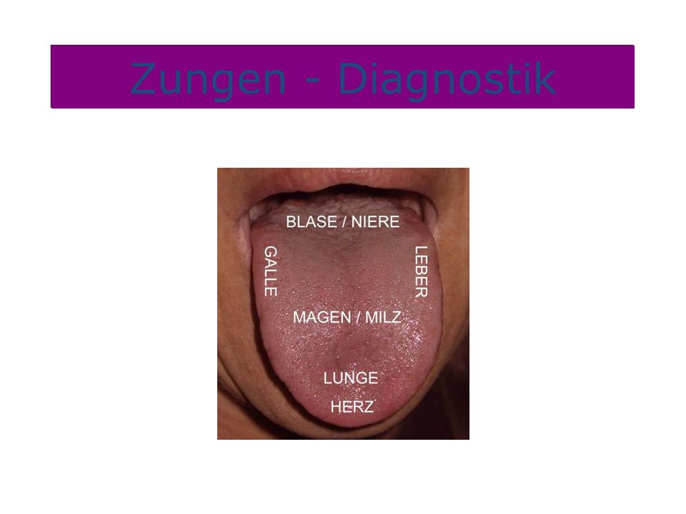 Zungen - Diagnostik