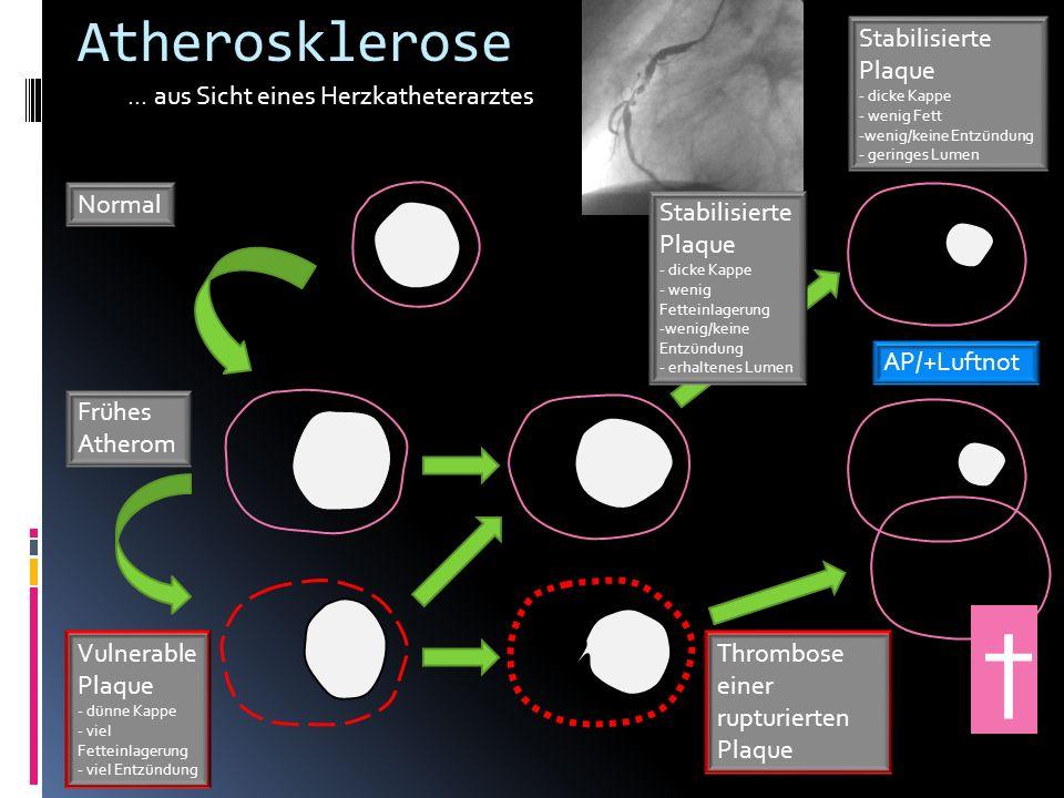 Stabilisierte Plaque - dicke Kappe - wenig Fett -wenig/keine Entzündung - geringes Lumen Atherosklerose... aus Sicht eines Herzkatheterarztes Normal F