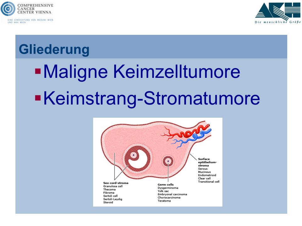 Gliederung  Maligne Keimzelltumore  Keimstrang-Stromatumore