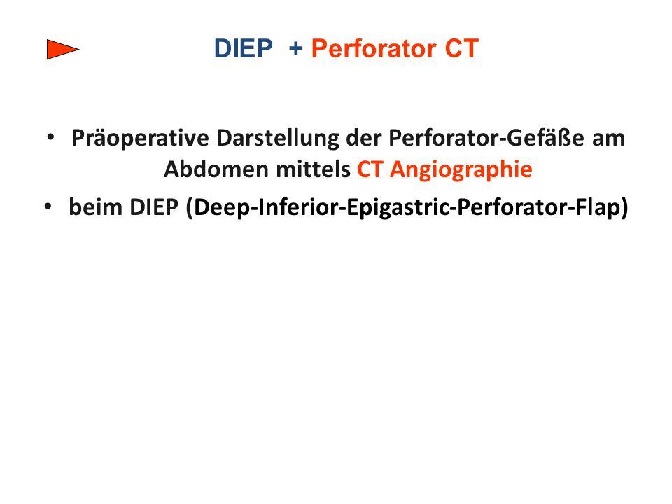 DIEP + Perforator CT Präoperative Darstellung der Perforator-Gefäße am Abdomen mittels CT Angiographie beim DIEP (Deep-Inferior-Epigastric-Perforator-Flap)