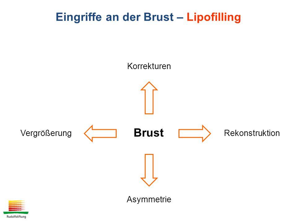 Brust VergrößerungRekonstruktion Korrekturen Asymmetrie Eingriffe an der Brust – Lipofilling