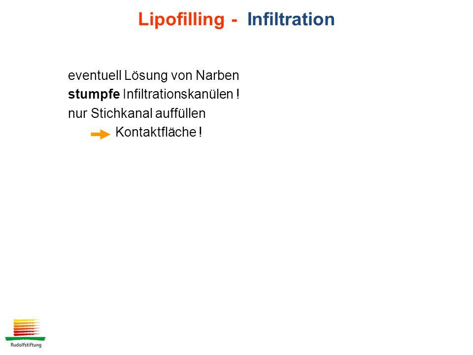 eventuell Lösung von Narben stumpfe Infiltrationskanülen .