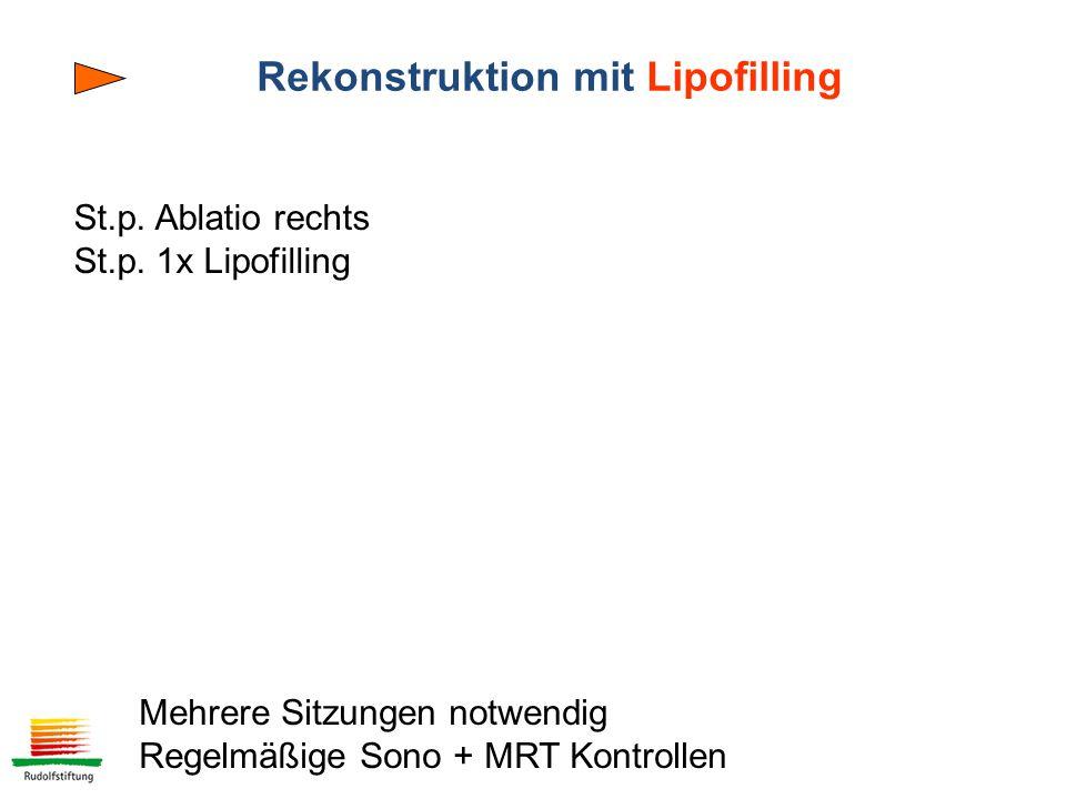Rekonstruktion mit Lipofilling St.p.Ablatio rechts St.p.