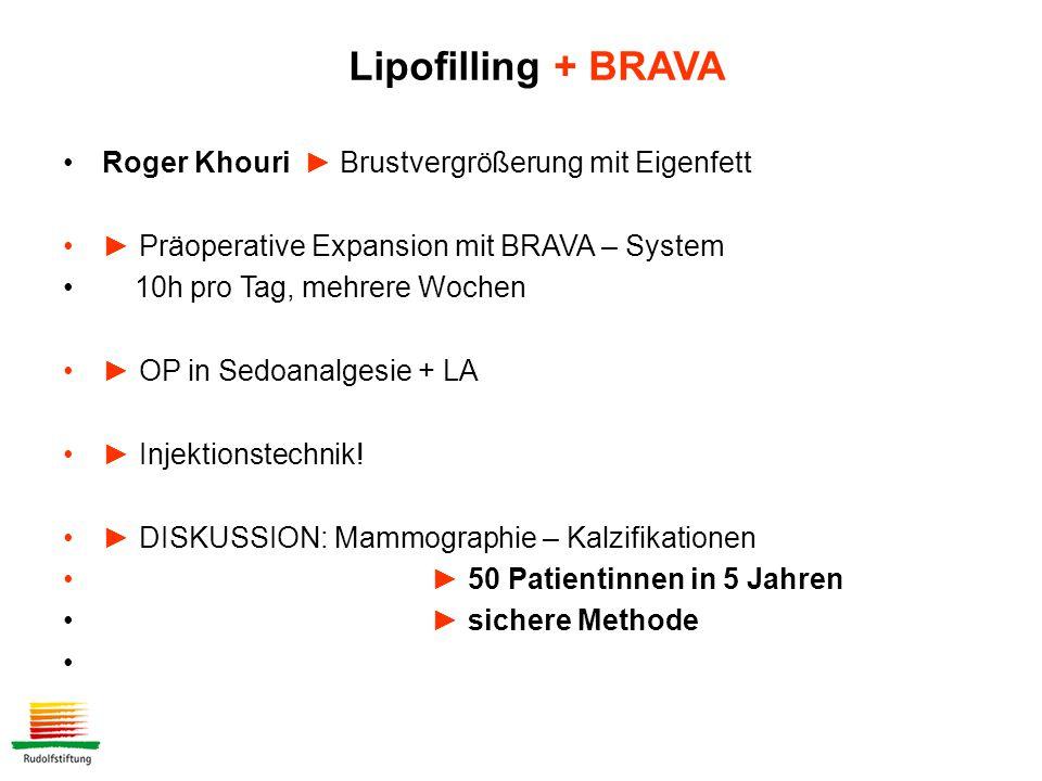 Roger Khouri ► Brustvergrößerung mit Eigenfett ► Präoperative Expansion mit BRAVA – System 10h pro Tag, mehrere Wochen ► OP in Sedoanalgesie + LA ► Injektionstechnik.