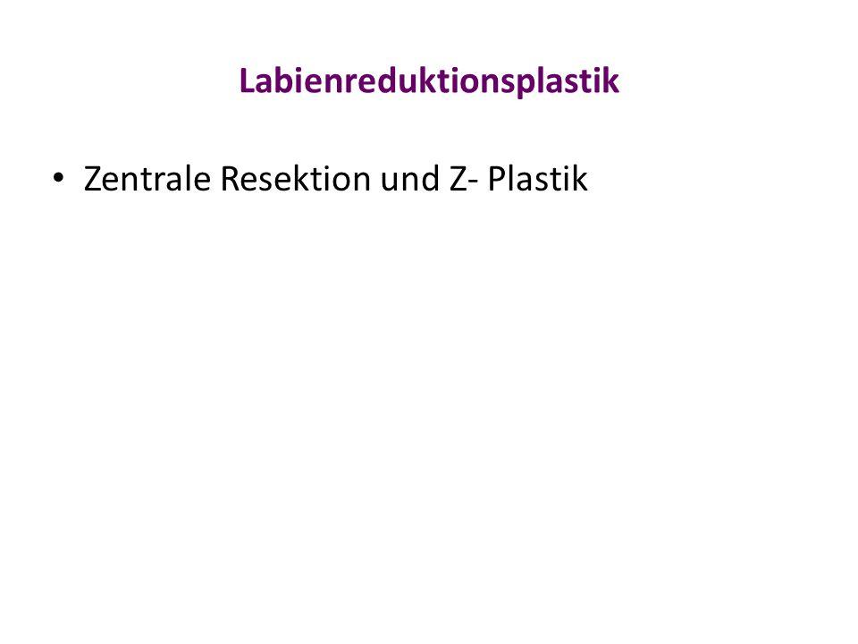 Labienreduktionsplastik Zentrale Resektion und Z- Plastik