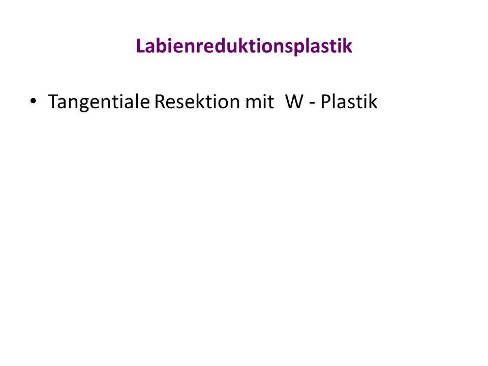 Labienreduktionsplastik Tangentiale Resektion mit W - Plastik