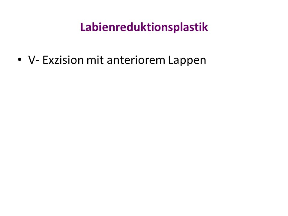 Labienreduktionsplastik V- Exzision mit anteriorem Lappen