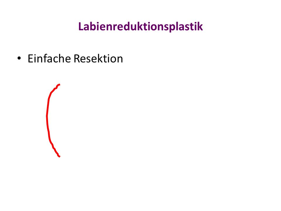 Labienreduktionsplastik Einfache Resektion