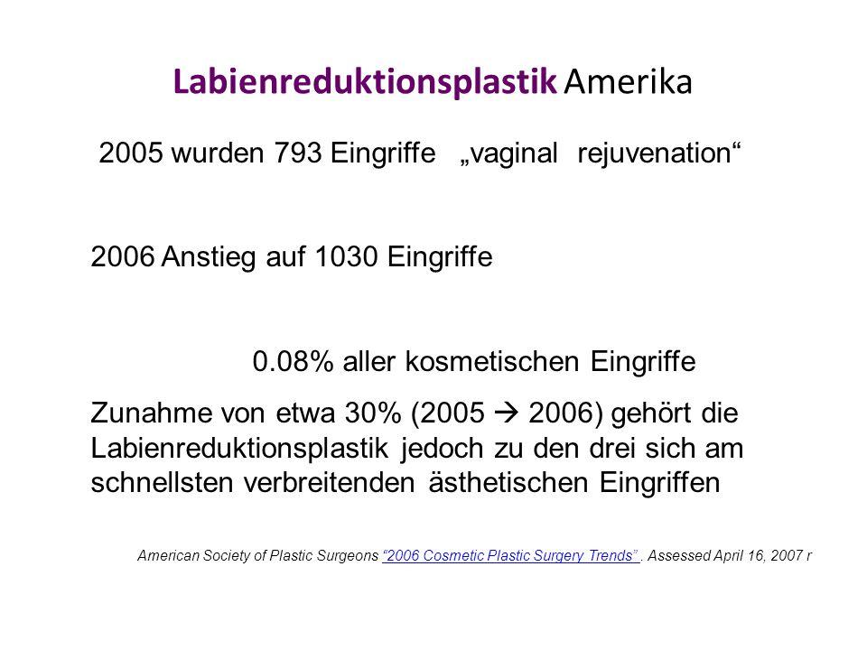 """Labienreduktionsplastik Amerika 2005 wurden 793 Eingriffe """"vaginal rejuvenation 2006 Anstieg auf 1030 Eingriffe 0.08% aller kosmetischen Eingriffe Zunahme von etwa 30% (2005  2006) gehört die Labienreduktionsplastik jedoch zu den drei sich am schnellsten verbreitenden ästhetischen Eingriffen American Society of Plastic Surgeons 2006 Cosmetic Plastic Surgery Trends ."""