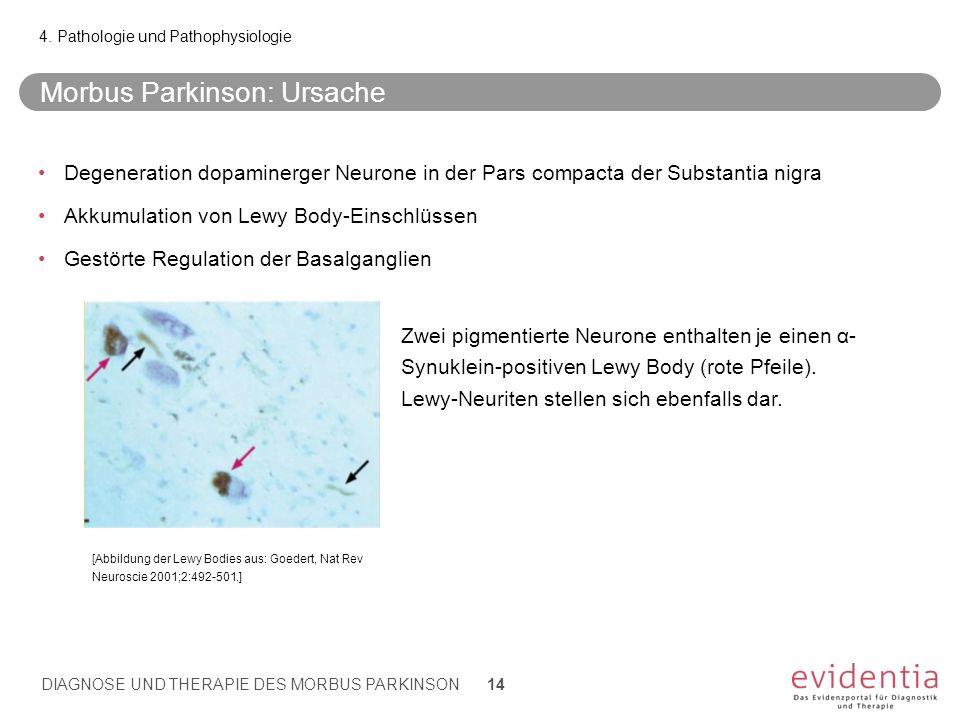 Morbus Parkinson: Ursache Degeneration dopaminerger Neurone in der Pars compacta der Substantia nigra Akkumulation von Lewy Body-Einschlüssen Gestörte