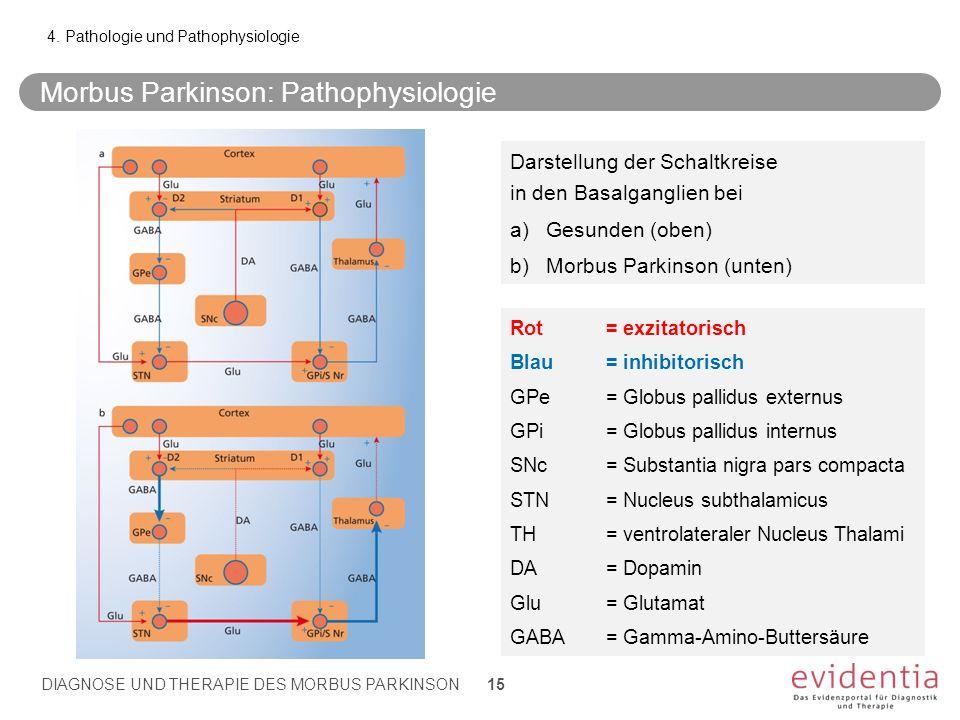 Rot= exzitatorisch Blau= inhibitorisch GPe = Globus pallidus externus GPi = Globus pallidus internus SNc = Substantia nigra pars compacta STN = Nucleu
