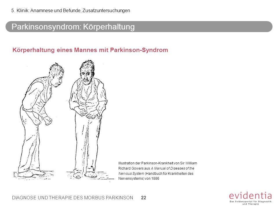 Parkinsonsyndrom: Körperhaltung Körperhaltung eines Mannes mit Parkinson-Syndrom 5. Klinik: Anamnese und Befunde, Zusatzuntersuchungen DIAGNOSE UND TH
