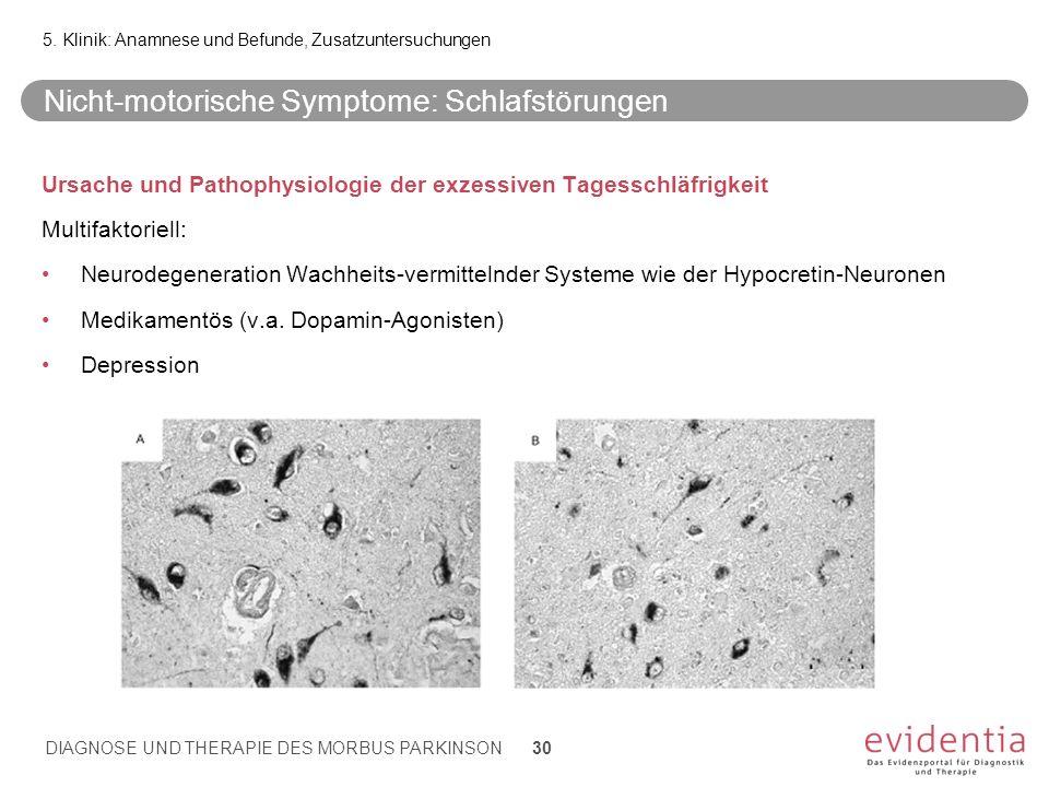 Nicht-motorische Symptome: Schlafstörungen Ursache und Pathophysiologie der exzessiven Tagesschläfrigkeit Multifaktoriell: Neurodegeneration Wachheits