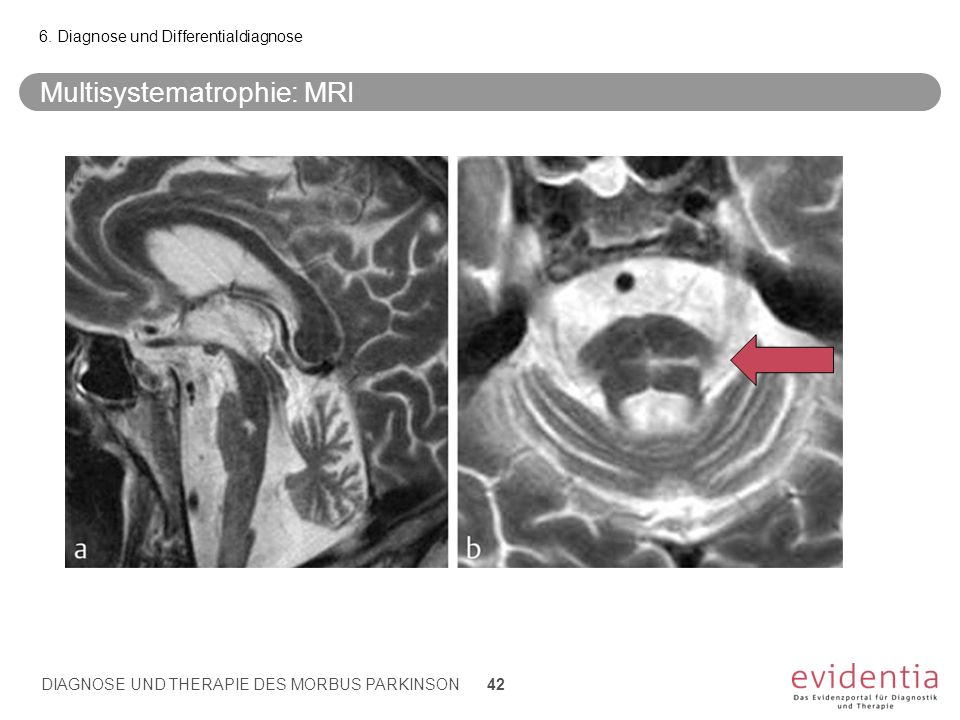 Multisystematrophie: MRI 6. Diagnose und Differentialdiagnose DIAGNOSE UND THERAPIE DES MORBUS PARKINSON 42