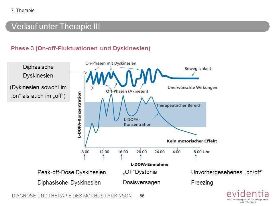 Verlauf unter Therapie III Phase 3 (On-off-Fluktuationen und Dyskinesien) 7. Therapie DIAGNOSE UND THERAPIE DES MORBUS PARKINSON 56 Peak-off-Dose Dysk