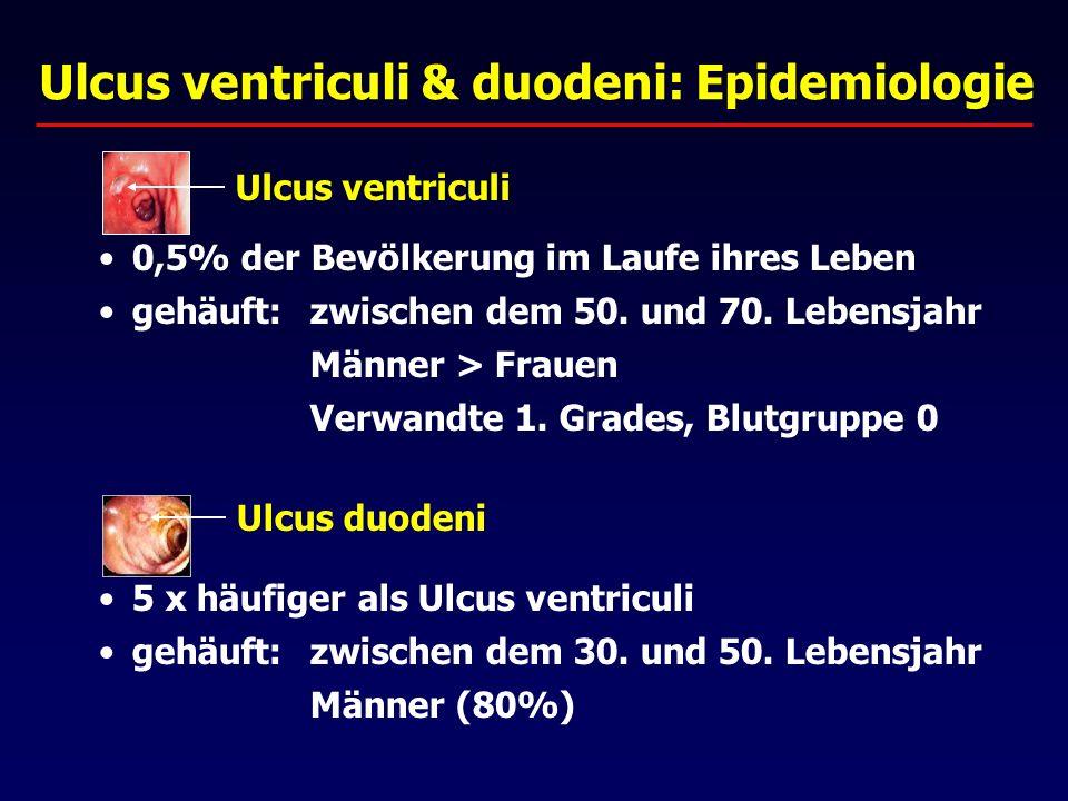 Ulcus ventriculi & duodeni: Epidemiologie 0,5% der Bevölkerung im Laufe ihres Leben gehäuft:zwischen dem 50.