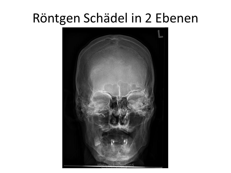 Röntgen Schädel in 2 Ebenen Waltaud Leiss, 07/2015