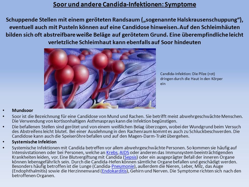 """Soor und andere Candida-Infektionen: Symptome Schuppende Stellen mit einem geröteten Randsaum (""""sogenannte Halskrausenschuppung ), eventuell auch mit Pusteln können auf eine Candidose hinweisen."""