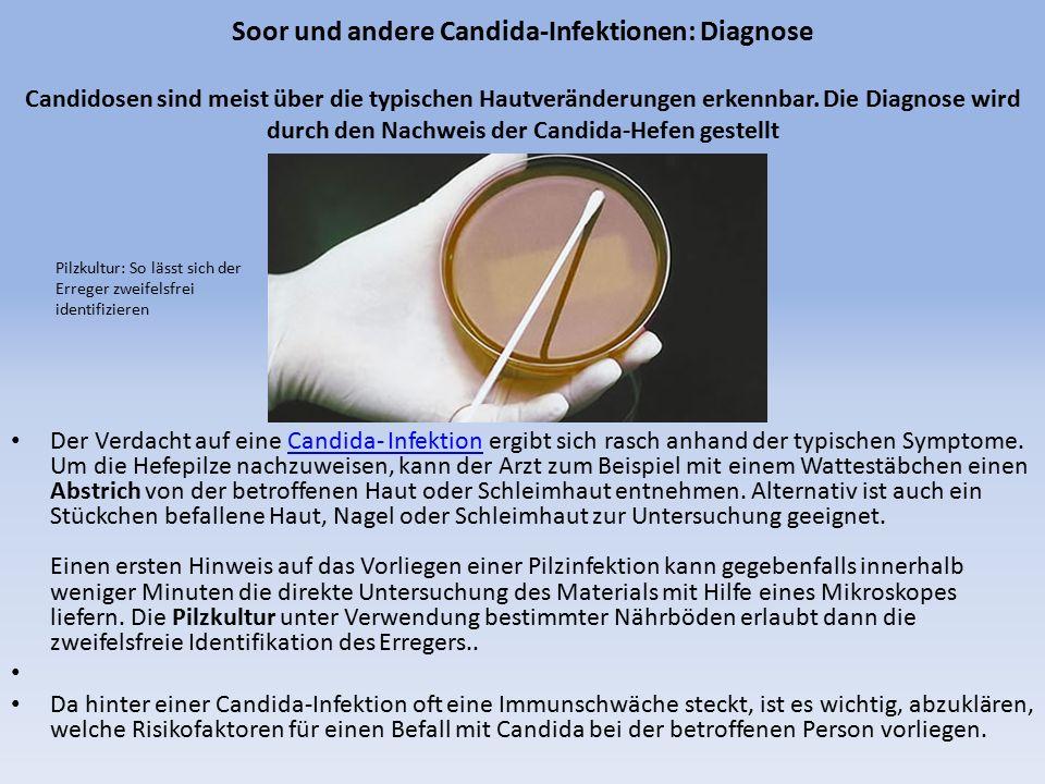 Soor und andere Candida-Infektionen: Diagnose Candidosen sind meist über die typischen Hautveränderungen erkennbar. Die Diagnose wird durch den Nachwe