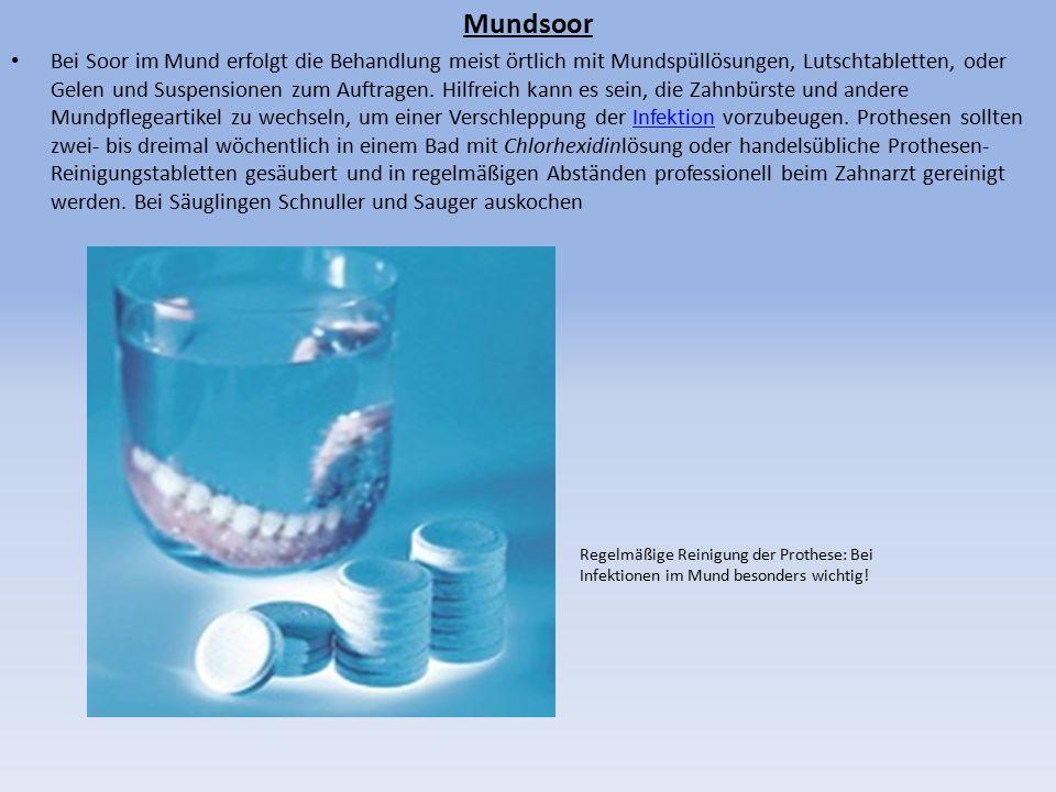 Mundsoor Bei Soor im Mund erfolgt die Behandlung meist örtlich mit Mundspüllösungen, Lutschtabletten, oder Gelen und Suspensionen zum Auftragen.