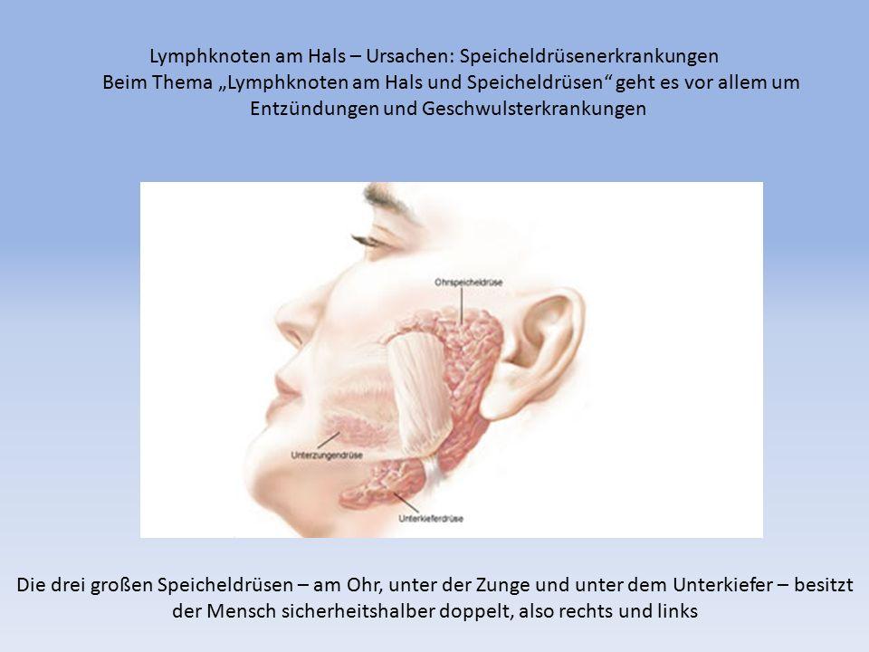 """Die drei großen Speicheldrüsen – am Ohr, unter der Zunge und unter dem Unterkiefer – besitzt der Mensch sicherheitshalber doppelt, also rechts und links Lymphknoten am Hals – Ursachen: Speicheldrüsenerkrankungen Beim Thema """"Lymphknoten am Hals und Speicheldrüsen geht es vor allem um Entzündungen und Geschwulsterkrankungen"""