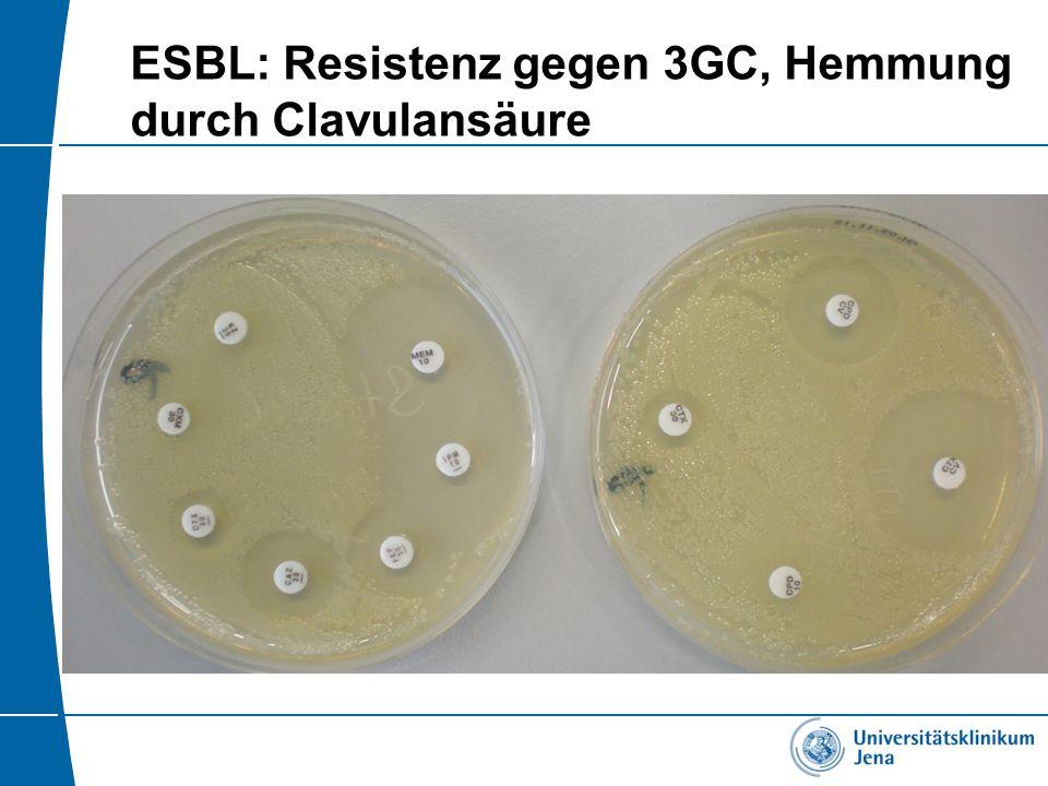 ESBL: Resistenz gegen 3GC, Hemmung durch Clavulansäure