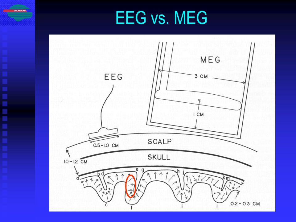 EEG vs. MEG