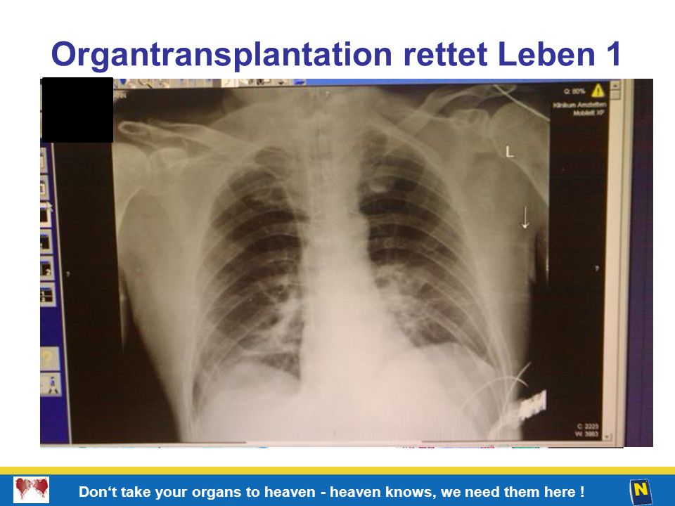 6 Don't take your organs to heaven - heaven knows, we need them here ! Organtransplantation rettet Leben 1