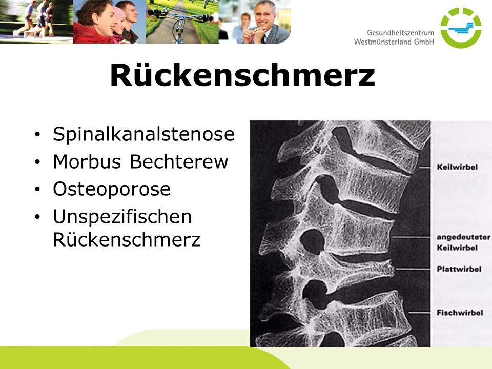 Rückenschmerz Spinalkanalstenose Morbus Bechterew Osteoporose Unspezifischen Rückenschmerz